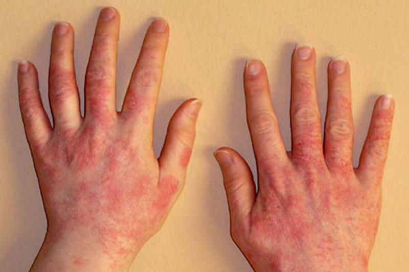 аллергическая реакция на бытовую химию